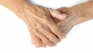 huidveroudering handen