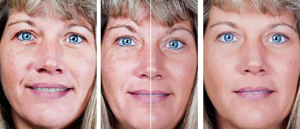 huidverbetering JV Clinic